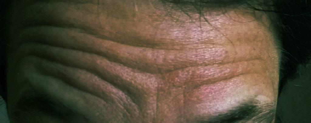 Die PraeSenZ-Stirn